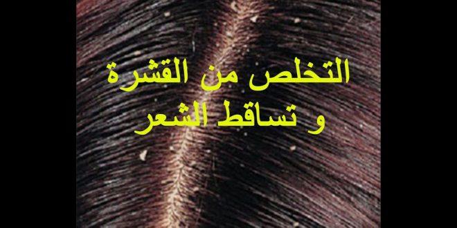 صورة القشرة وتساقط الشعر , كيف تعالج القشرة والتساقط بسهوله