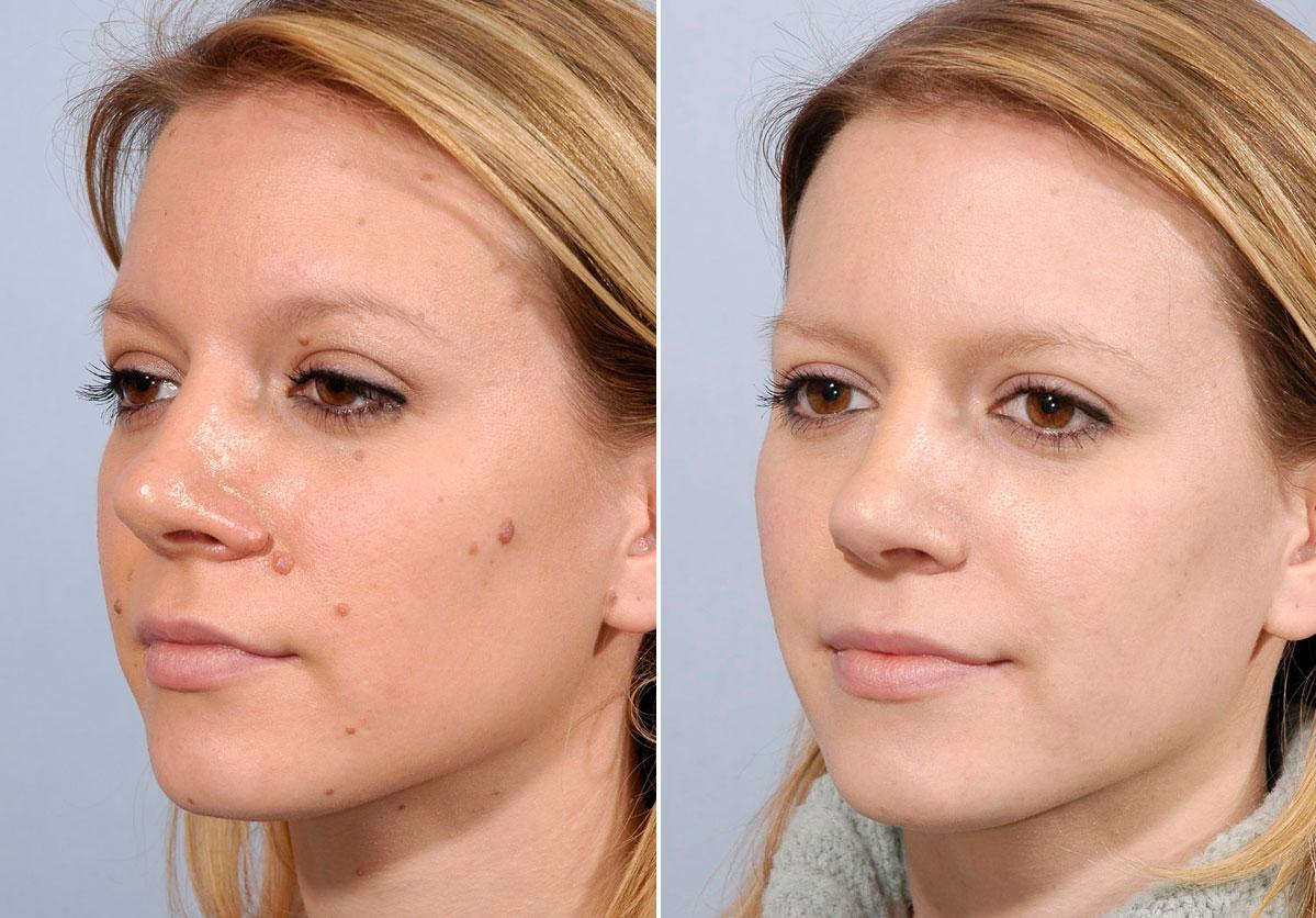 صورة اسرار لنضارت وجهك ,علاج الشامات في الوجه