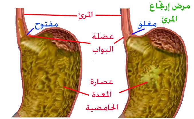 صورة علاج ارتجاع المريء ,علاج ضعف العضلة العاصرة